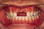 治療前けがで前歯がなくなってしまった