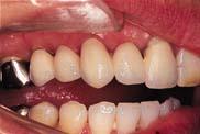 上顎の奥歯のインプラントはできないと言われた。
