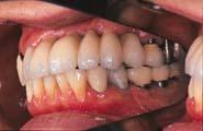 歯は商売道具