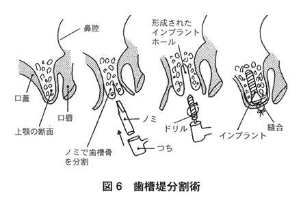 歯槽堤分割術