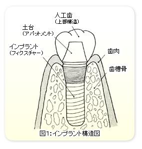 図1:インプラント構造図